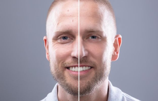 a man face after having Microneedling | Radio Frequency Microneedling | Radio Frequency Microneedling Can Help Transform Your Skin | Here's How With Secret RF