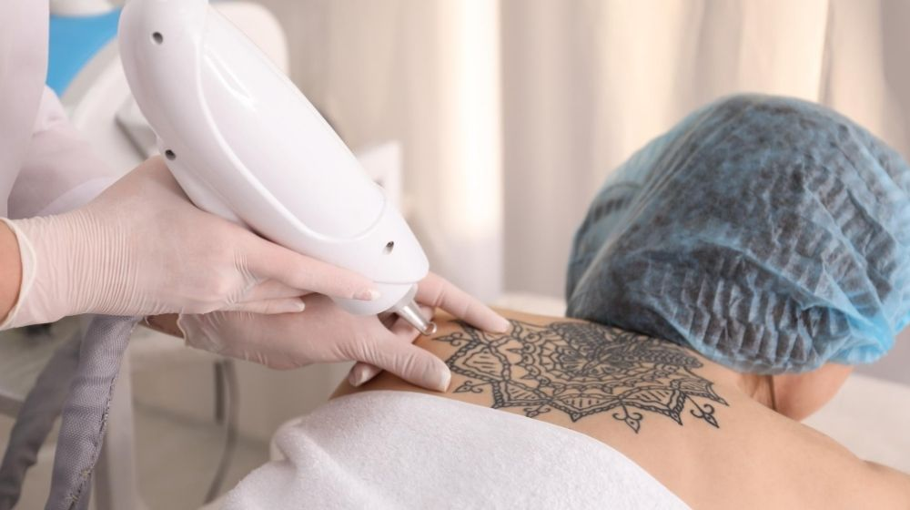 a women is having tattoo removal treatment | Feature | Enlighten By Cutera: The Best Laser Tattoo Removal (How It Works)