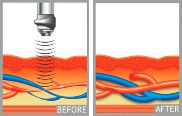 how Gainwave treatment works | Gainswave Procedure: How it Works | Gainswave Benefits: How This New Device Helps With ED