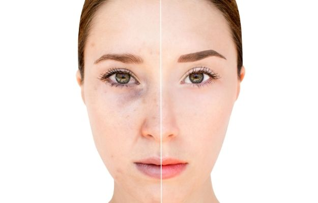 skin tone improve before and after   Microneedling   7 Different Saggy Skin Solutions