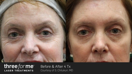 ThreeForMe-Before-&-After—6