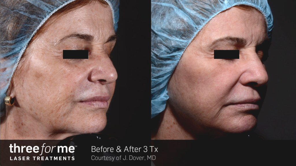 ThreeForMe-Before-&-After-Photo-5